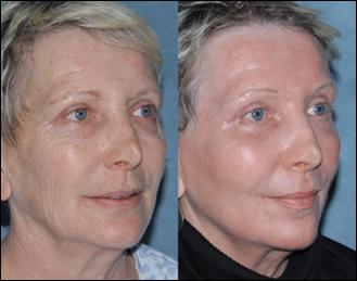 laser skin resurfacing lancaster, pa