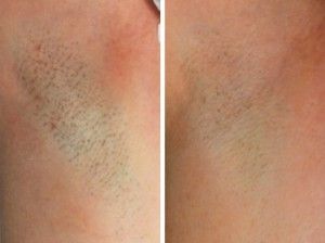 Laser Hair Removal In Lancaster Pa Dermatology Physicians Skin
