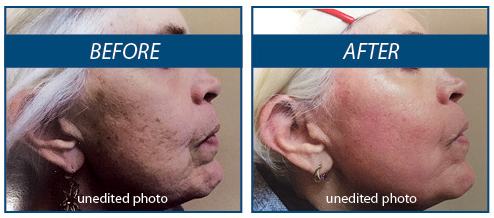 Laser Skin Resurfacing | Dermatology Physicians, Inc
